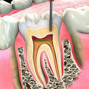 300-endodonzia